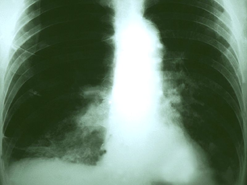 News Picture: AI Takes Aim at Lung Cancer Screening